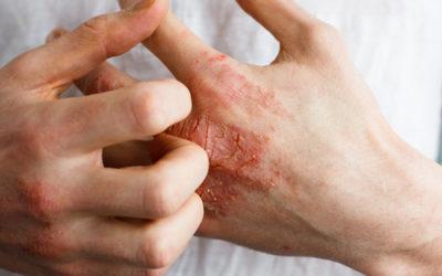 Substances allergisantes. Comment se protéger ?